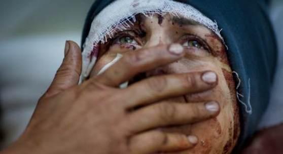 1. Preis Reportagen Einzelfotos Rodrigo Abd, Argentinien, The Associated Press